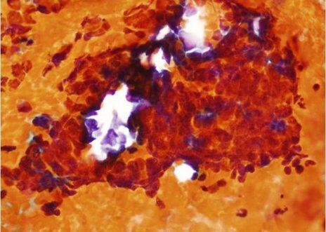 Acúmulo tridimensional irregular de células pequeñas con anisonucleosis, pleomorfismo, hipercromasia y fragmentos nucleares.
