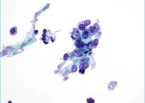 Acúmulo de células con citoplasma moderado, núcleo redondeado y nucléolo prominente.