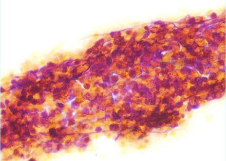 Agregado de células pequeñas con escaso citoplasma, pleomorfismo y alta relación núcleo- citoplasma.