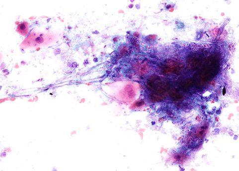 Esporas y seudohifas de Candida Albicans. Cepillado esofágico. Tinción de Papanicolaou