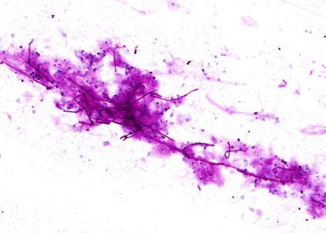 Esporas y seudohifas de Candida Albicans Cepillado esofágico. Tinción PAS