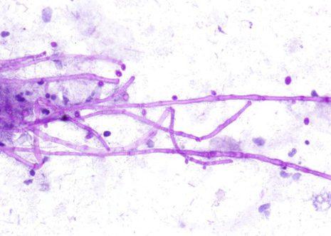 Bifurcación característica de fragmentos de hifas con septación. Cepillado esofágico. Tinción Papanicolaou