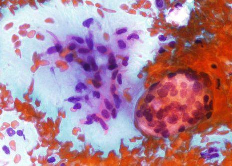Algunas células epiteliales pequeñas y fragmentos de estroma mixoide.
