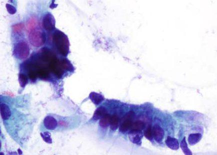 Células columnares endocervicales con barra terminal y cilios.