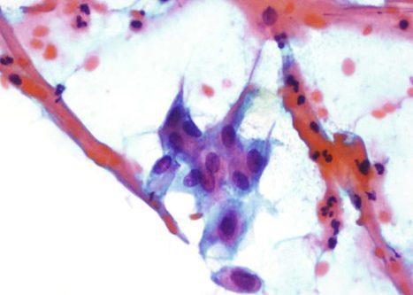 Metaplasia inmadura presentando proyecciones citoplasmáticas.