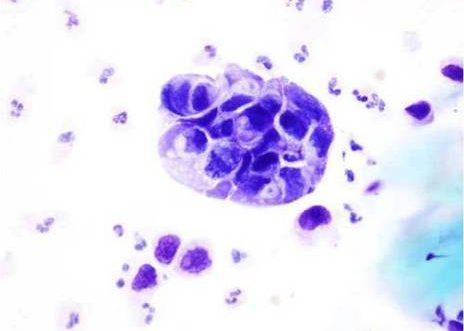 Orina de un caso de carcinoma pobremente diferenciado de vejiga. Acúmulo de células con núcleos grandes irregulares y alta relación núcleo citoplasma.