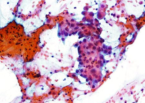 Células de morfología escamosa inmadura con alta relación núcleo citoplasma. Núcleo grande y cromatina granular fina.