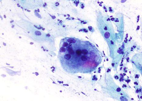 Los macrófagos multinucleados o las células gigantes no son un hallazgo específico especialmente en mujeres postmenopáusicas.