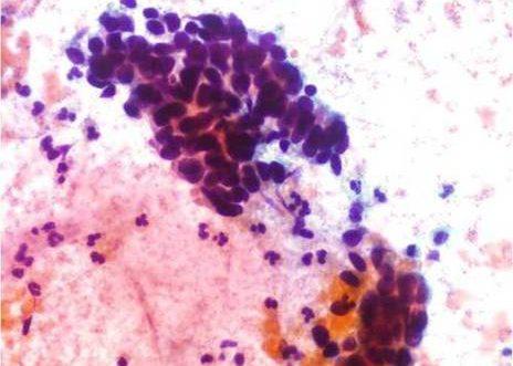 Adenocarcinoma Endocervical. Celulas indiferenciadas sin evidencia de caracteres citoplasmáticos y nucleos hipercromaticos marcadamente anormales.