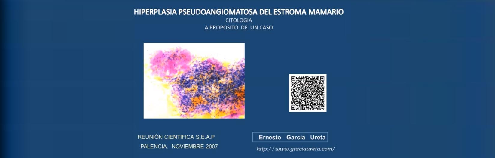 Hiperplasia Pseudoangiomatosa del Estroma Mamario