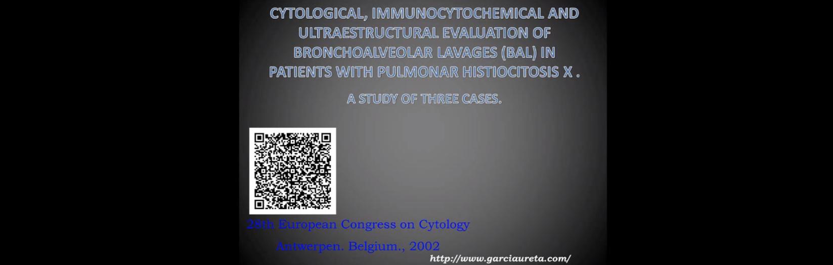 Histiocitosis X pulmonar