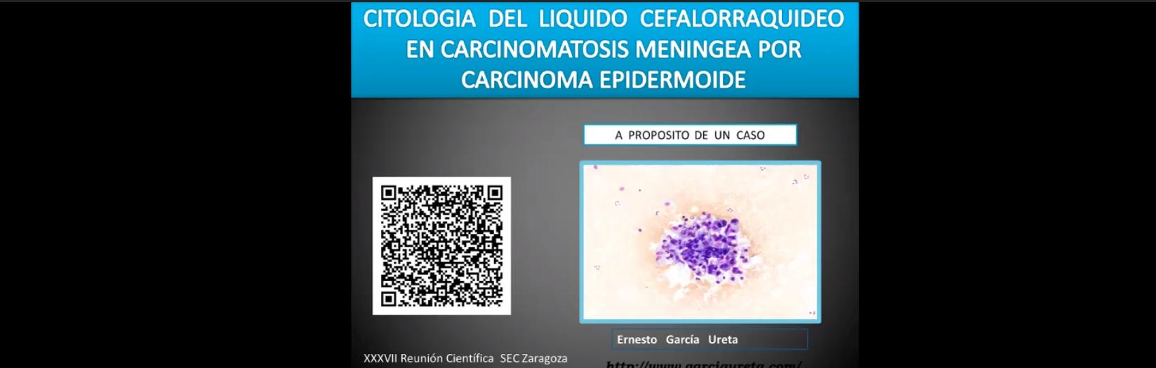 Meningitis carcinomatosa por carcinoma epidermoide