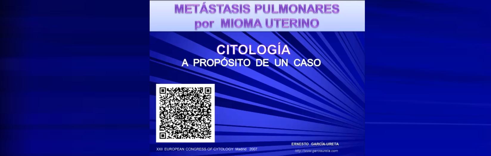 Metastasis en pulmón