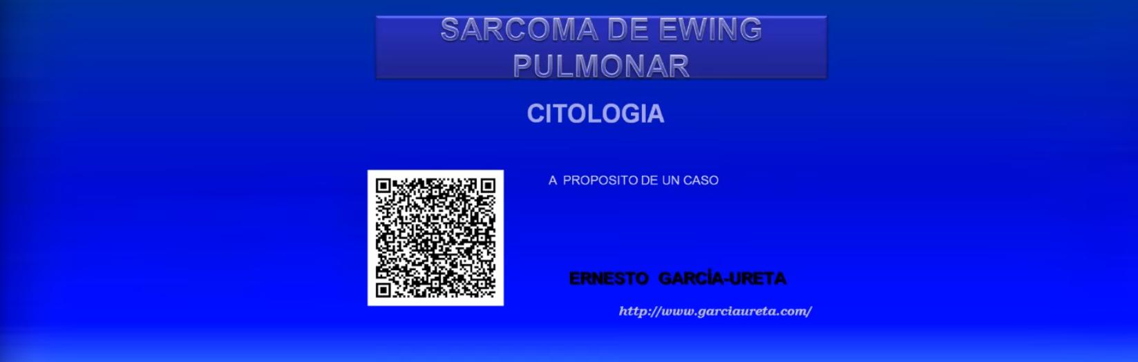 Sarcoma de Ewing pulmonar